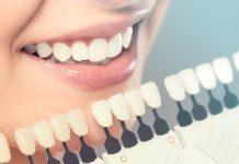 teeth whitening san diego