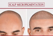 scalp micropigmentation- How is Scalp Micropigmentation Treatment Beneficial for Hair Loss?
