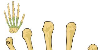 Top natural remedies of Arthritis