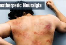 KNOW ABOUT POSTHERPETIC NEURALGIA IN A NUTSHELL